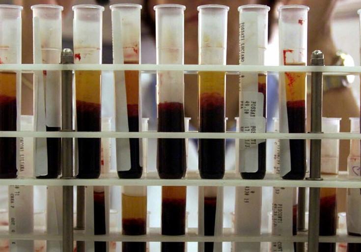 trasfusioni infette