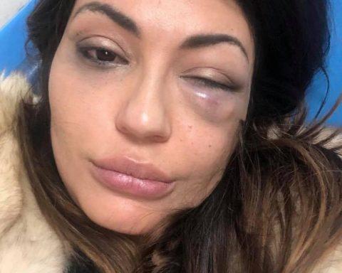 """Vanesa Rodriguez, dopo l'aggressione subita il 21 gennaio 2019 al ristorante """"Veneziano"""" a Formia"""
