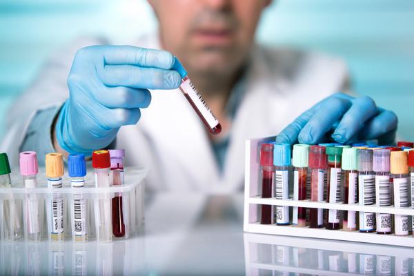test sangue