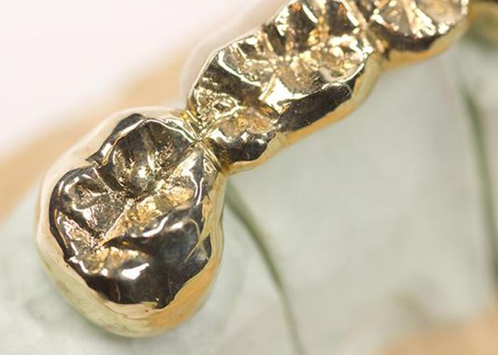 denti-oro